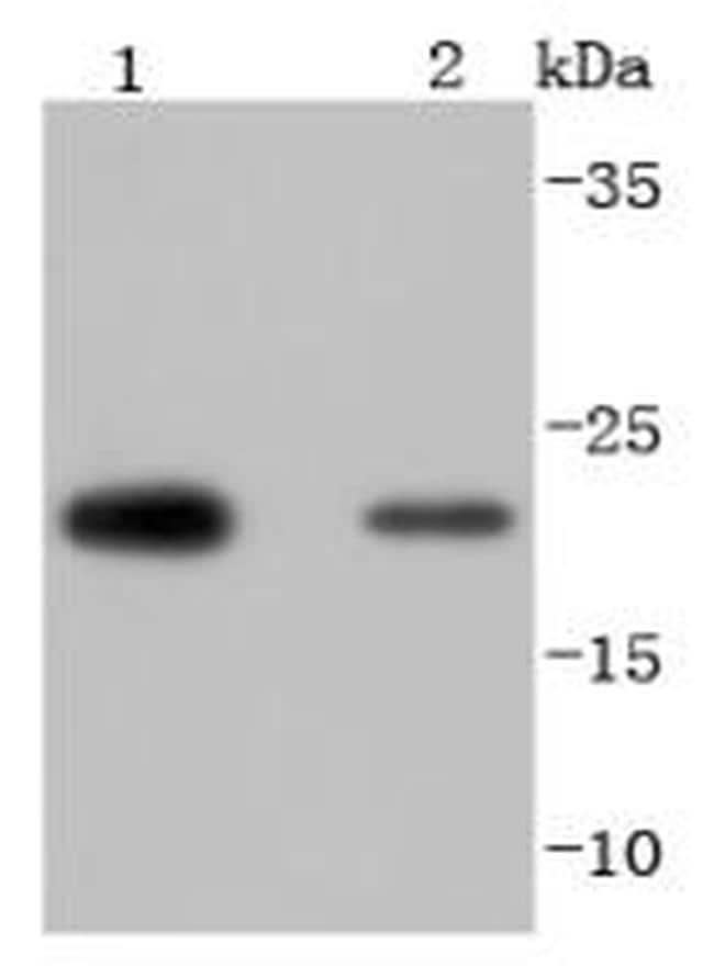 PRDX2 Antibody in Western Blot (WB)