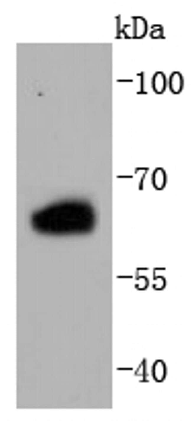 Estrogen Receptor beta Antibody in Western Blot (WB)