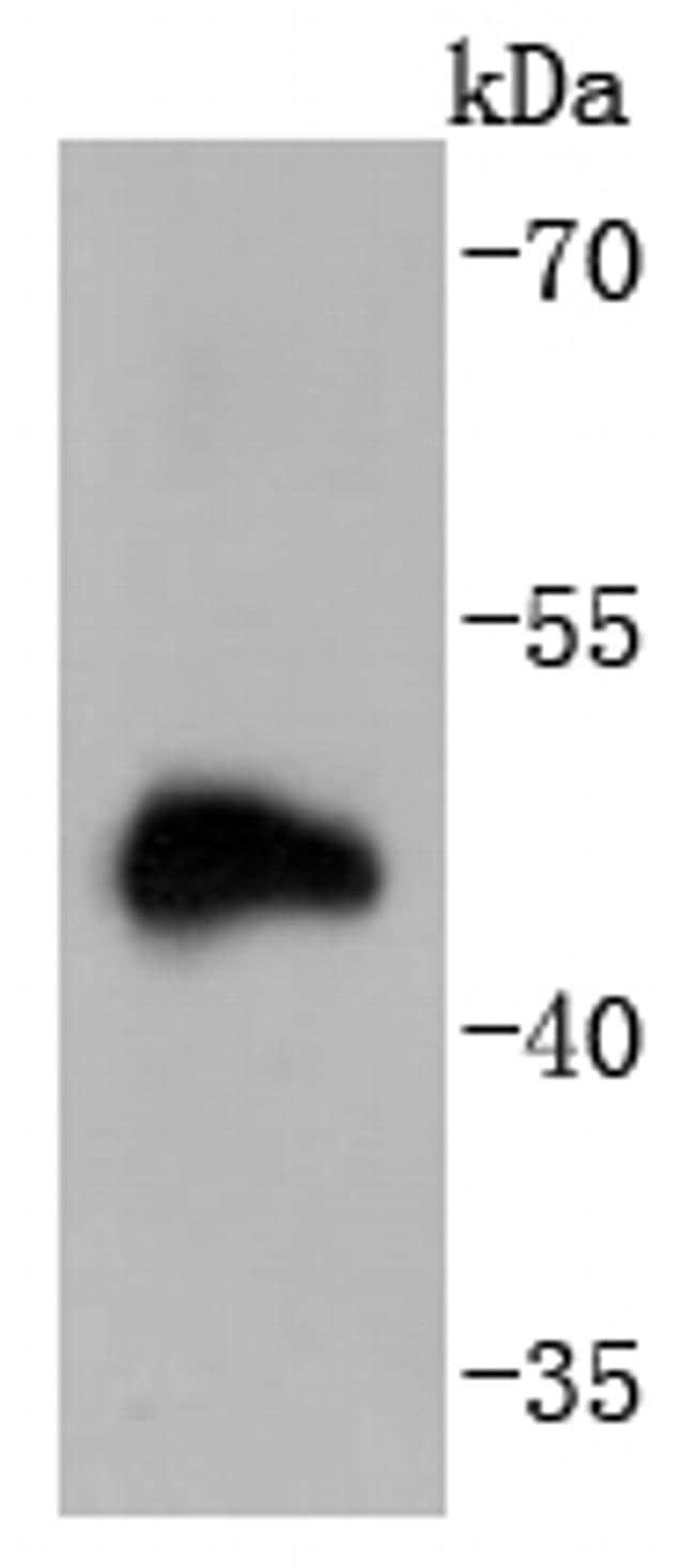 Doublecortin Antibody in Western Blot (WB)