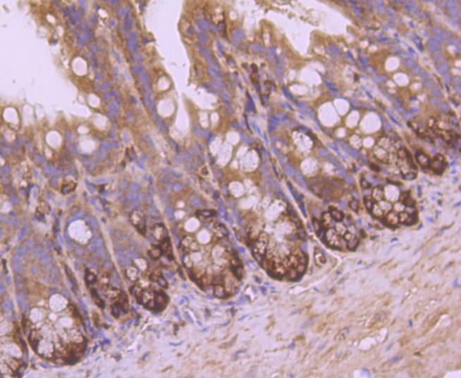 VAMP8 Antibody in Immunohistochemistry (Paraffin) (IHC (P))