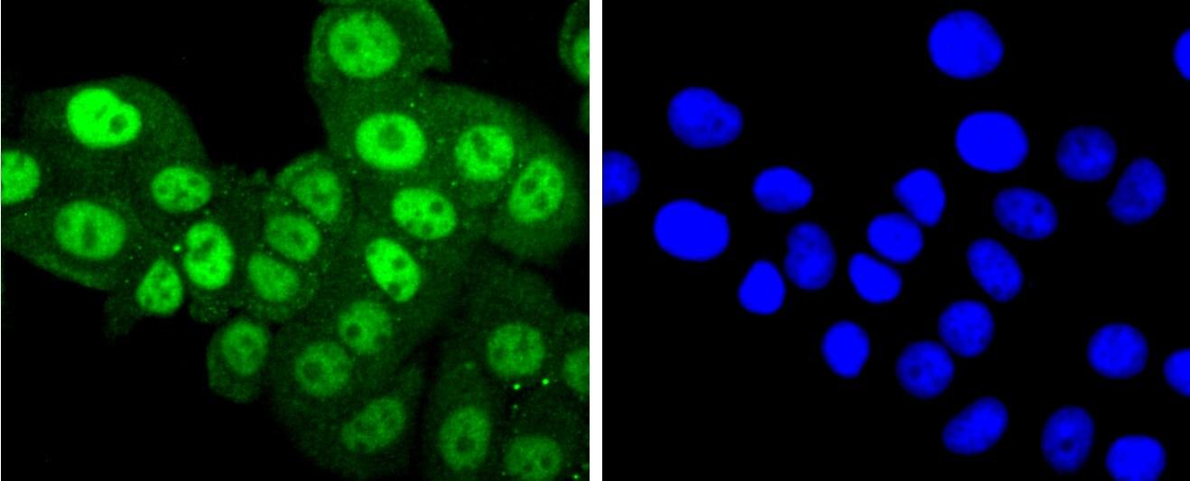 Phospho-PKC alpha (Thr638) Antibody in Immunocytochemistry (ICC)