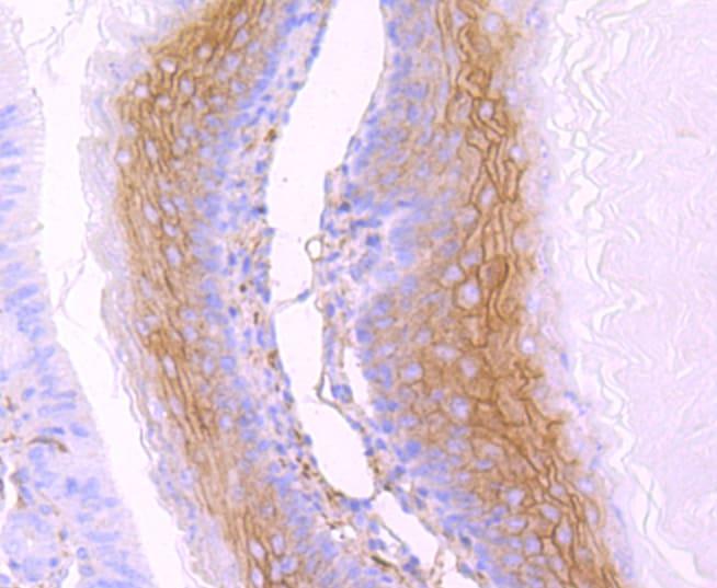 gamma Catenin Antibody in Immunohistochemistry (Paraffin) (IHC (P))