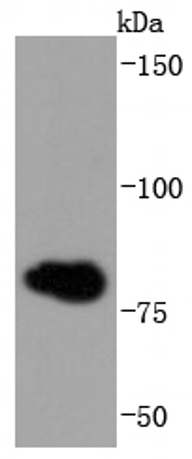 gamma Catenin Antibody in Western Blot (WB)