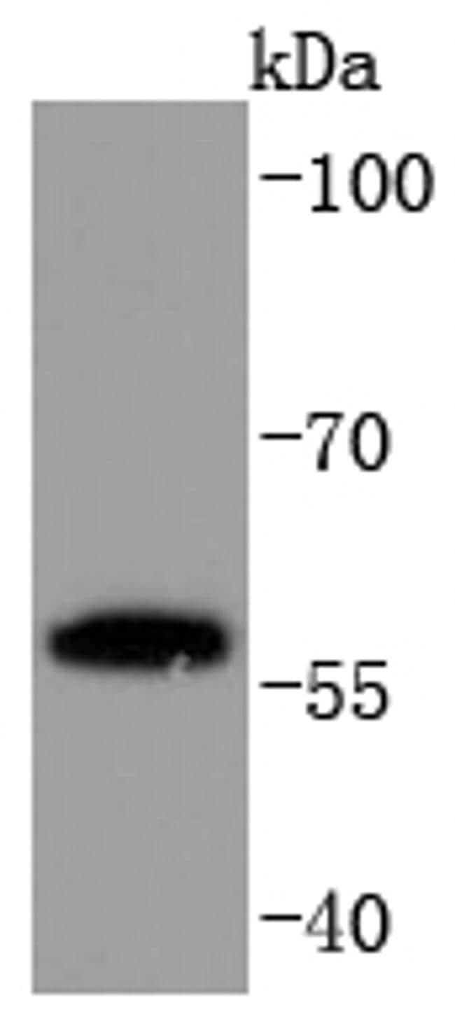 PPAR gamma Antibody in Western Blot (WB)