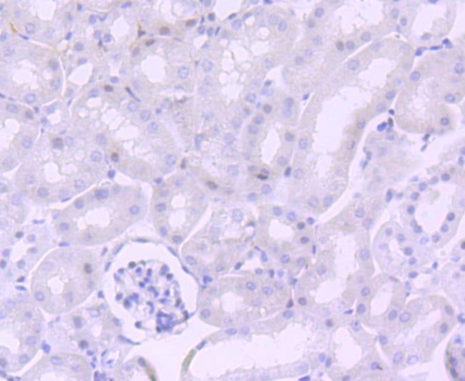 NUMB Antibody in Immunohistochemistry (Paraffin) (IHC (P))