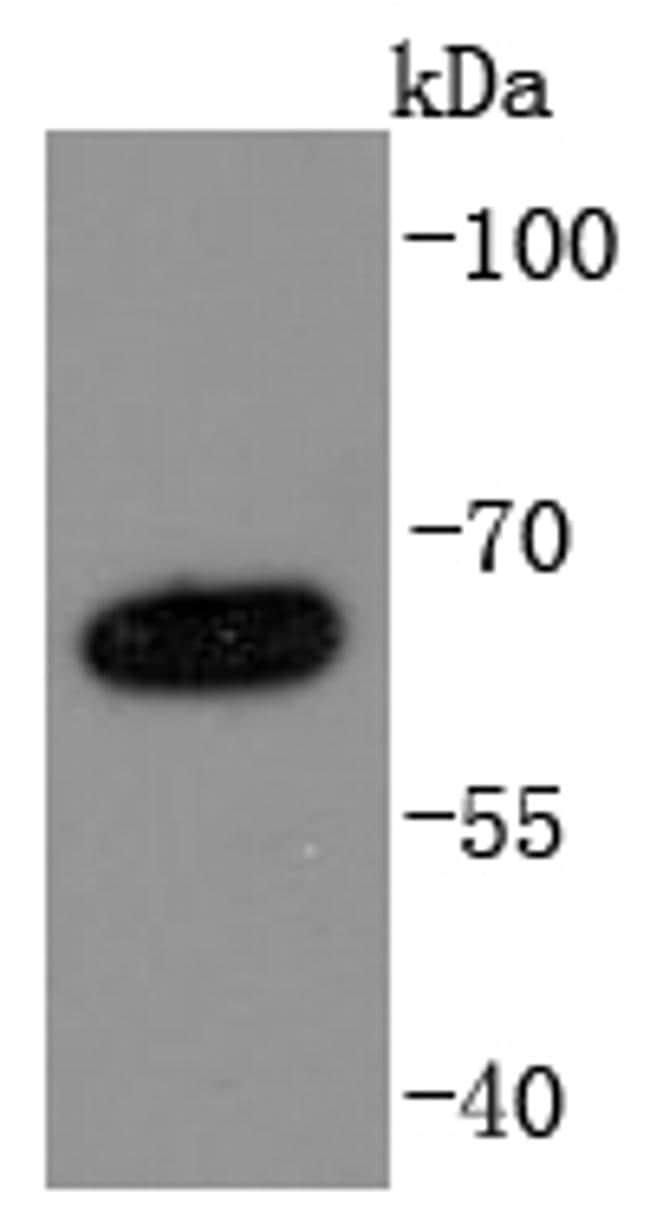 NUMB Antibody in Western Blot (WB)