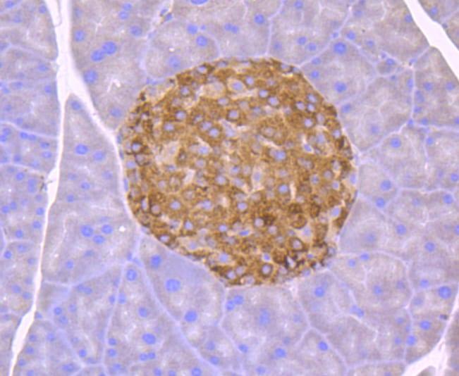 CHOP Antibody in Immunohistochemistry (Paraffin) (IHC (P))