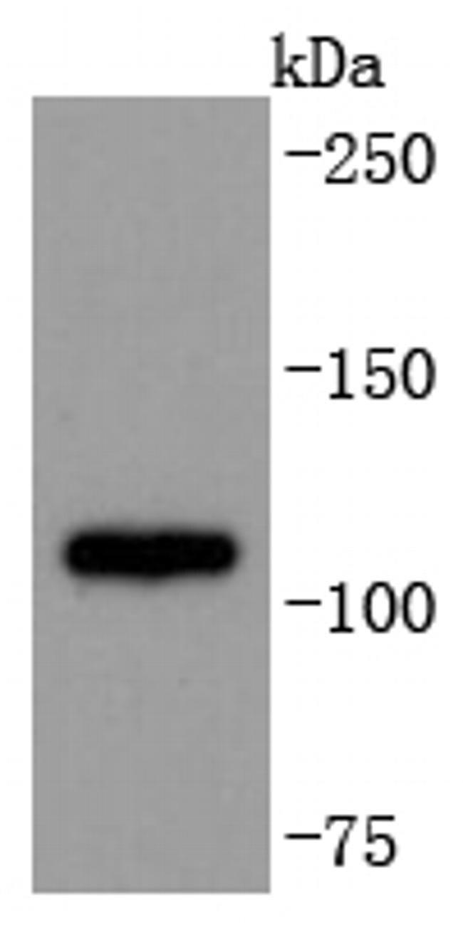 ADAM17 Antibody in Western Blot (WB)