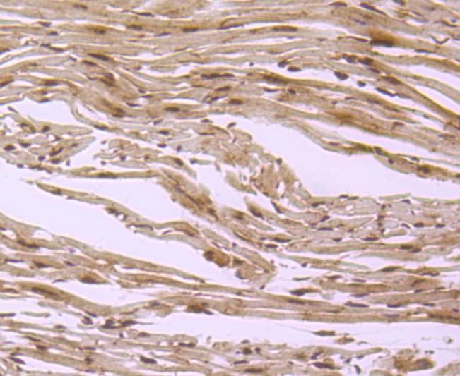 S1P1 Antibody in Immunohistochemistry (Paraffin) (IHC (P))