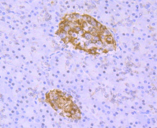 TDP-43 Antibody in Immunohistochemistry (Paraffin) (IHC (P))