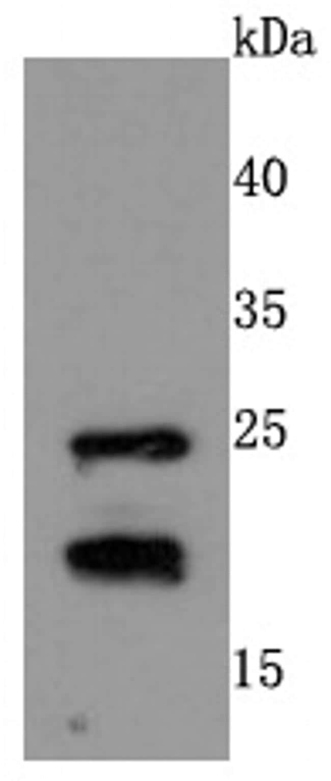 RAC1/RAC2/RAC3 Antibody in Western Blot (WB)