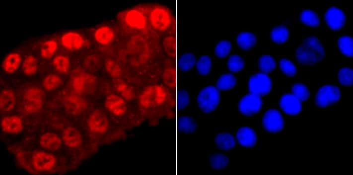 Phospho-RNA pol II CTD (Ser5) Antibody in Immunocytochemistry (ICC)