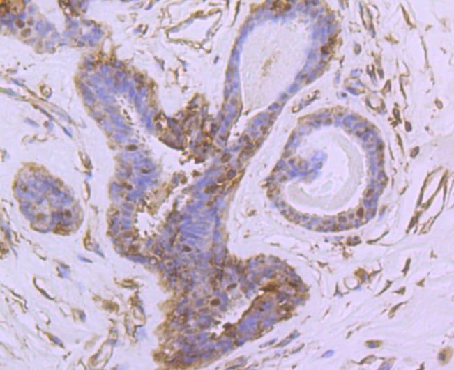 NUR77 Antibody in Immunohistochemistry (Paraffin) (IHC (P))