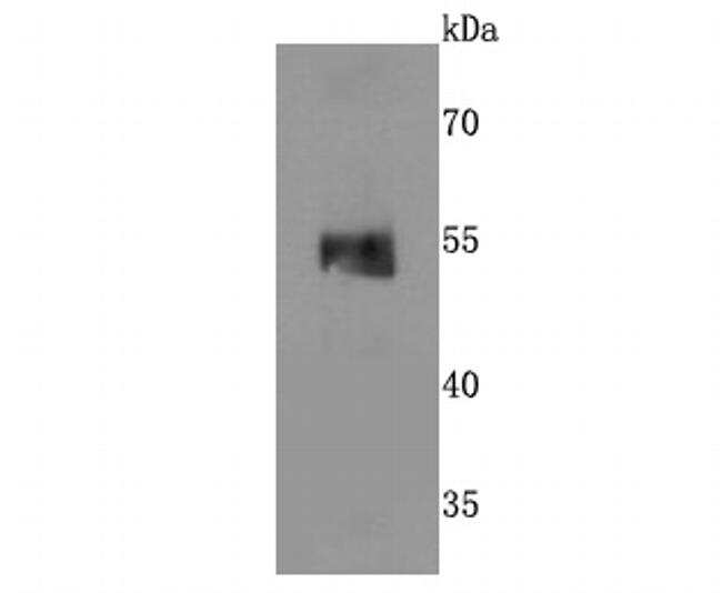 MINA53 Antibody in Western Blot (WB)
