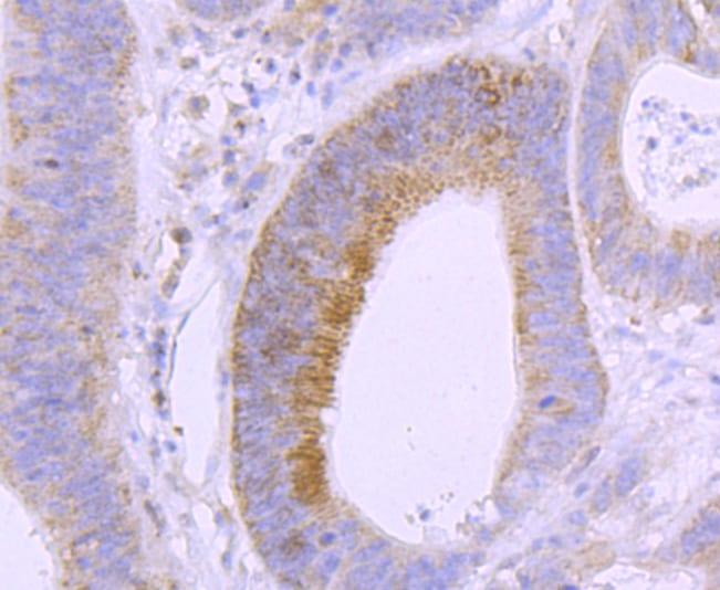 VDR Antibody in Immunohistochemistry (Paraffin) (IHC (P))