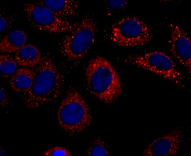 CXCL10 (IP-10) Antibody in Immunocytochemistry (ICC)