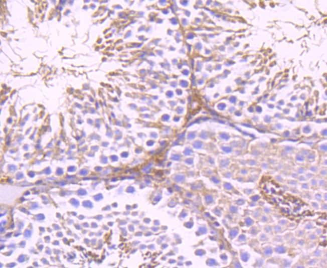 G6PD Antibody in Immunohistochemistry (Paraffin) (IHC (P))