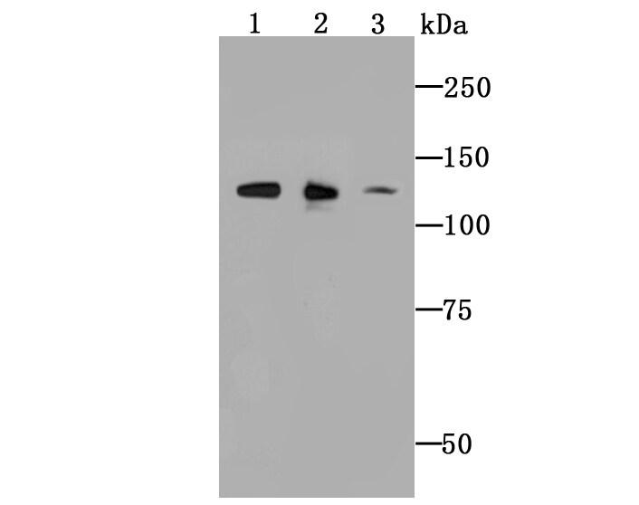 ULK1 Antibody in Western Blot (WB)