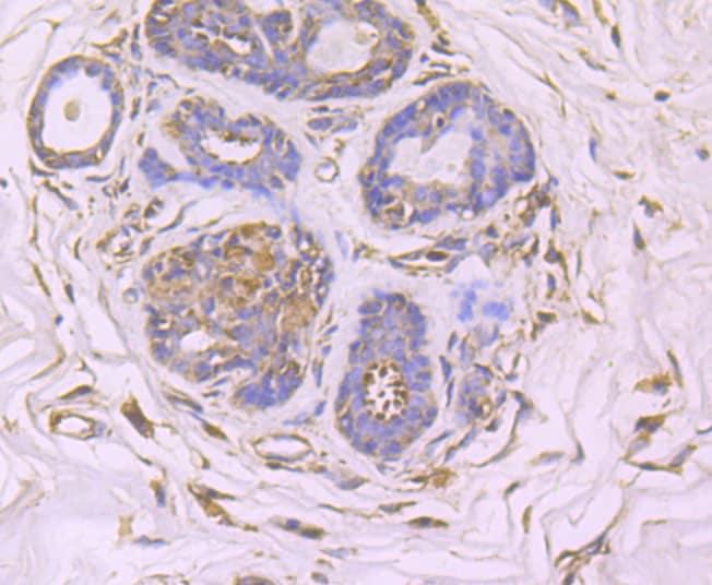 GCN2 Antibody in Immunohistochemistry (Paraffin) (IHC (P))