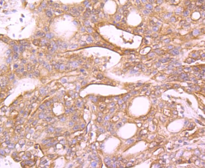 MUC4 Antibody in Immunohistochemistry (Paraffin) (IHC (P))