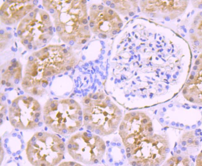 Fascin Antibody in Immunohistochemistry (Paraffin) (IHC (P))