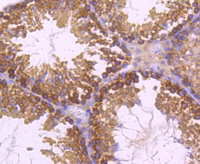 Dynamin 2 Antibody in Immunohistochemistry (Paraffin) (IHC (P))