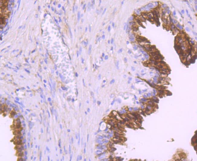 NDRG1 Antibody in Immunohistochemistry (Paraffin) (IHC (P))