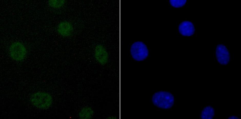 DDX5 Antibody in Immunocytochemistry (ICC)