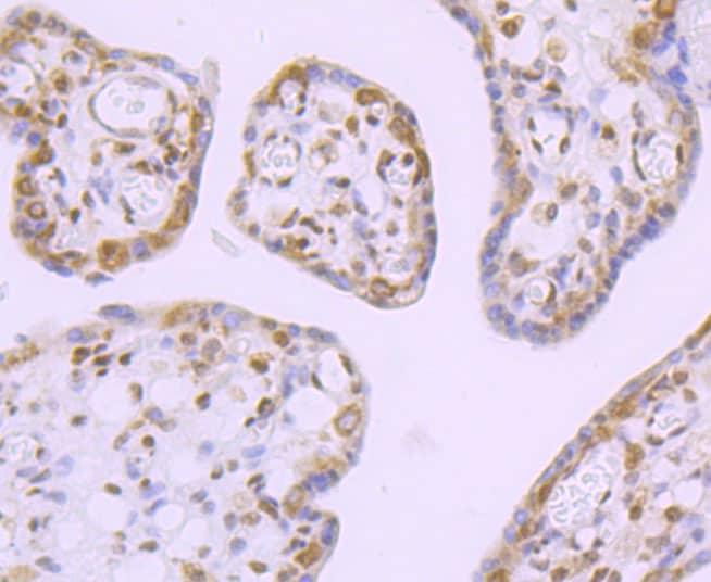 DDX5 Antibody in Immunohistochemistry (Paraffin) (IHC (P))