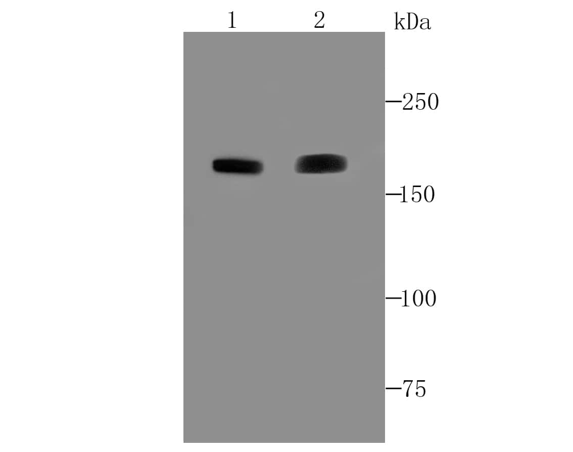 ACE Antibody in Western Blot (WB)