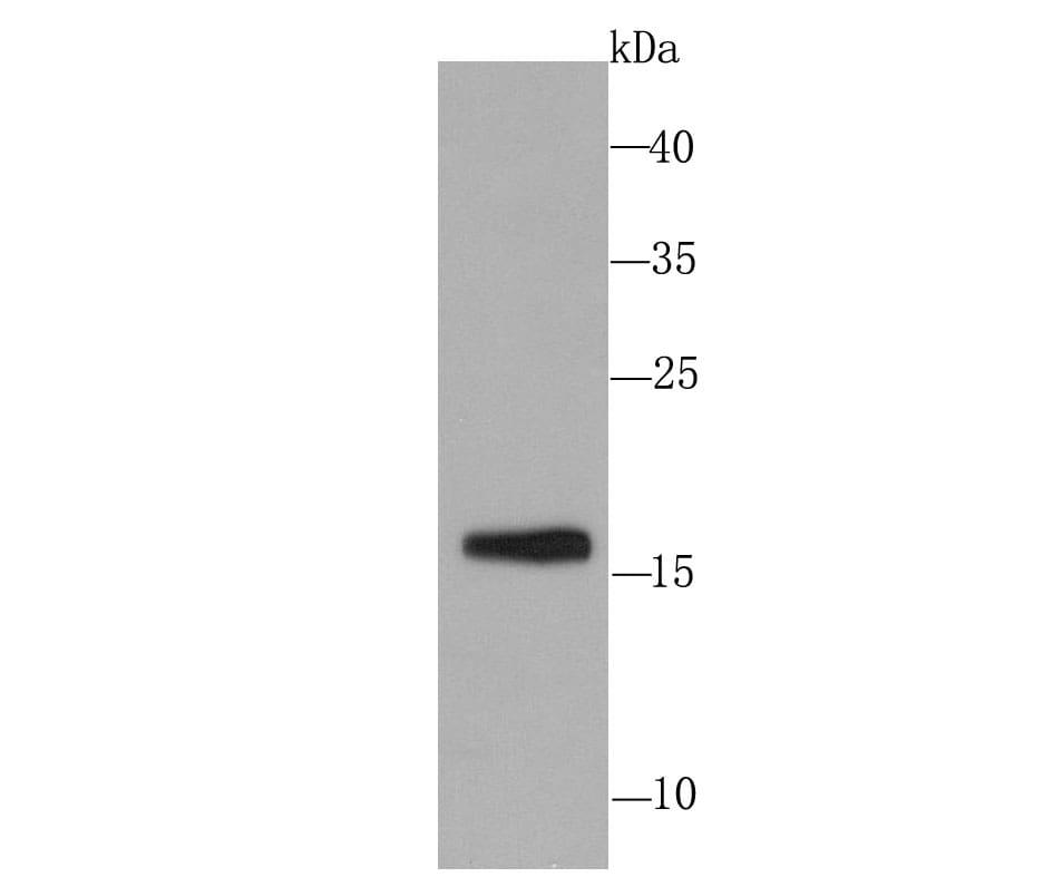 SKP1 Antibody in Western Blot (WB)