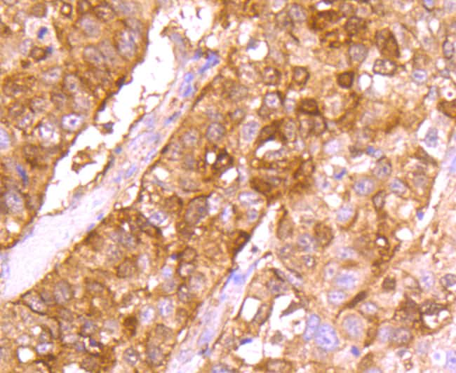 gamma Synuclein Antibody in Immunohistochemistry (Paraffin) (IHC (P))