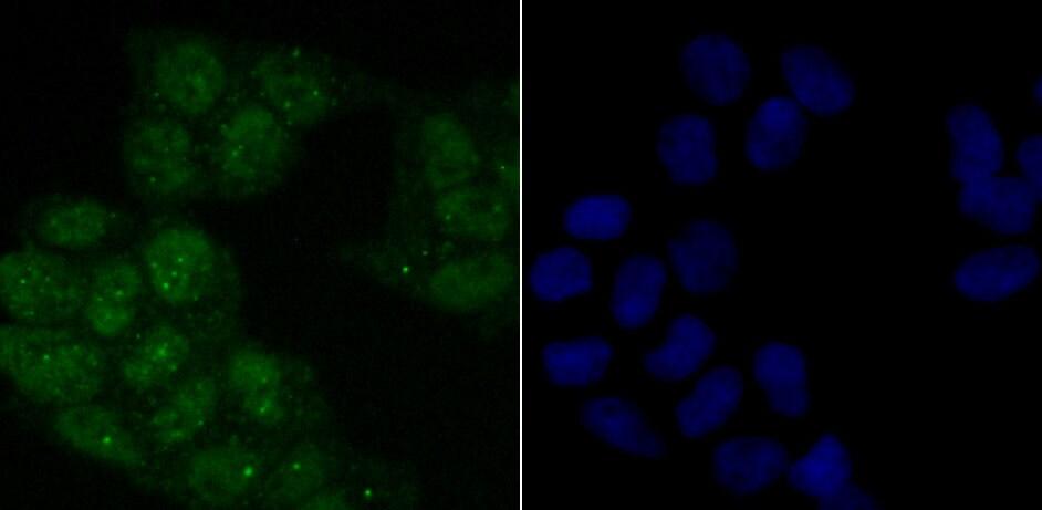 Phospho-ATM (Ser1981) Antibody in Immunocytochemistry (ICC)