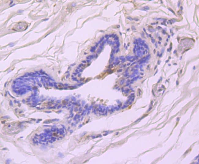 Phospho-ATM (Ser1981) Antibody in Immunohistochemistry (Paraffin) (IHC (P))