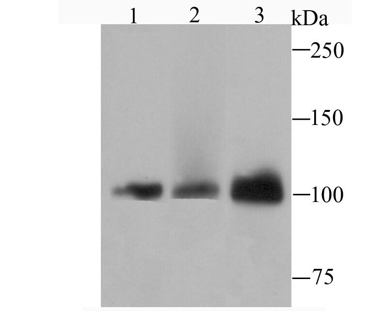 DNA ligase IV Antibody in Western Blot (WB)