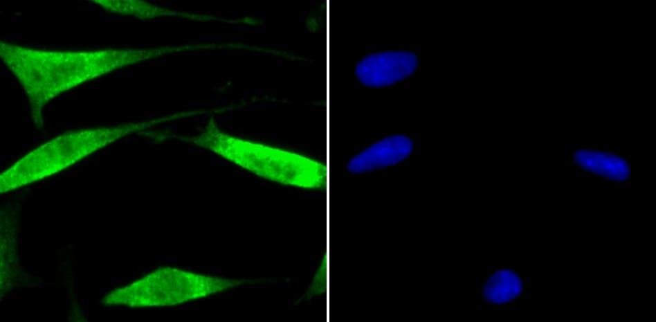 USP13 Antibody in Immunocytochemistry (ICC)