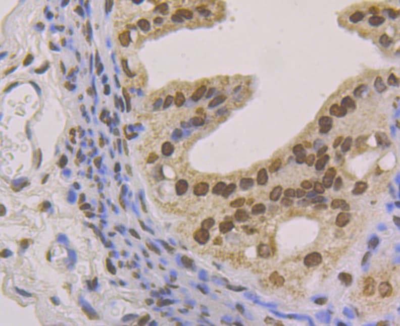 Histone Macro-H2A.1 Antibody in Immunohistochemistry (Paraffin) (IHC (P))