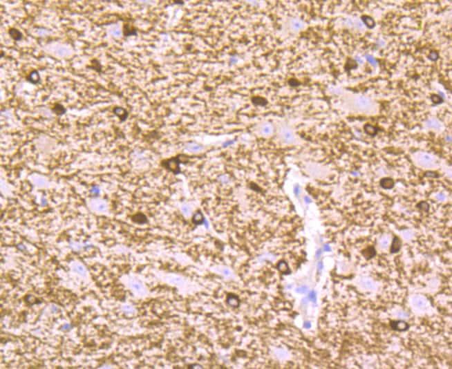 B-Raf Antibody in Immunohistochemistry (Paraffin) (IHC (P))
