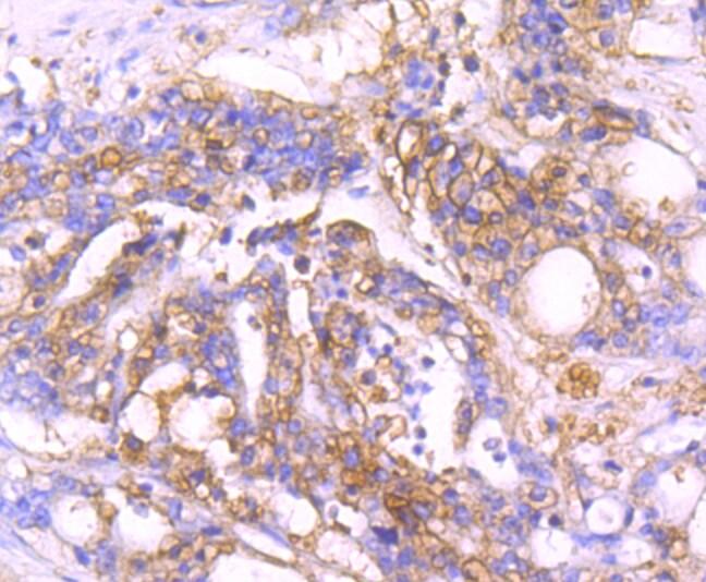 MVP Antibody in Immunohistochemistry (Paraffin) (IHC (P))