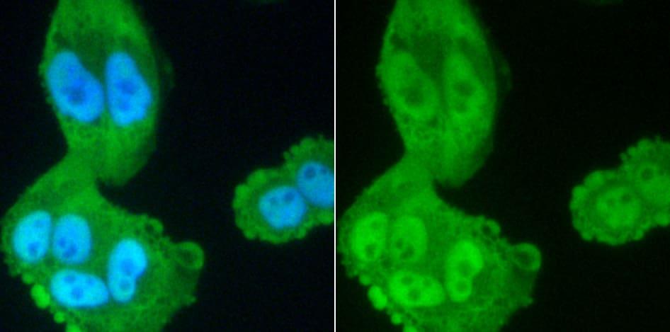 PP2A alpha/beta Antibody in Immunocytochemistry (ICC)