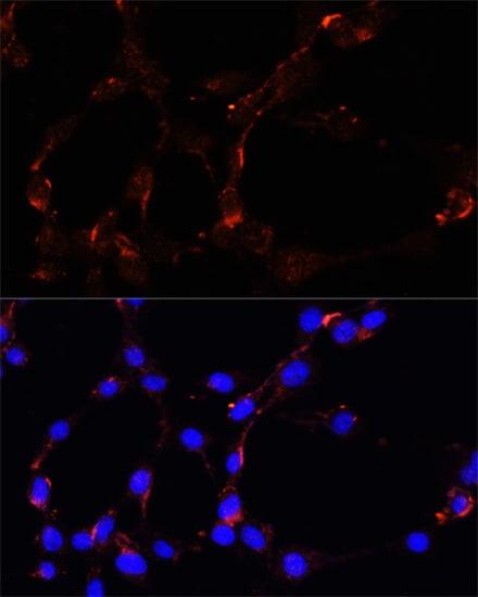 VDAC Antibody in Immunocytochemistry (ICC)