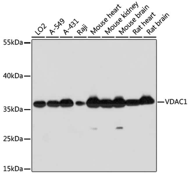 VDAC Antibody in Western Blot (WB)