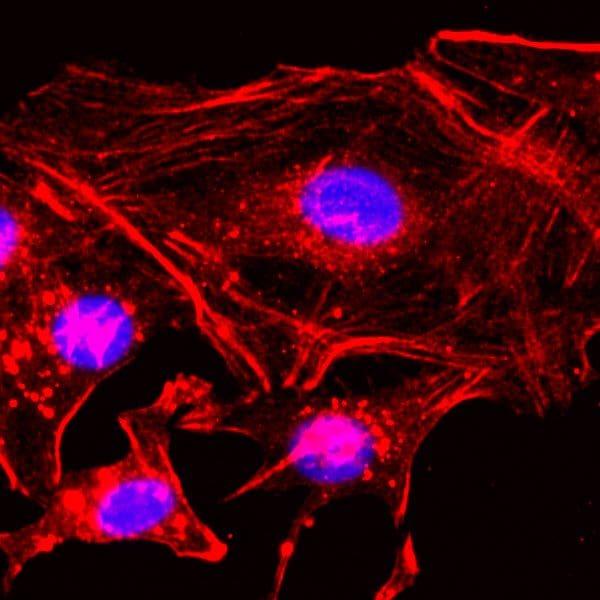 beta Actin Antibody in Immunocytochemistry (ICC)