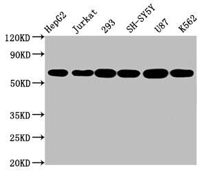 Aromatase Antibody in Western Blot (WB)