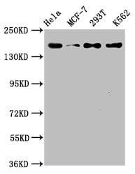 HDAC9 Antibody in Western Blot (WB)