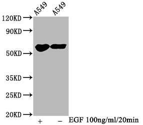 Phospho-PAK1/2/3 (Ser139, Ser141, Ser144) Antibody in Western Blot (WB)