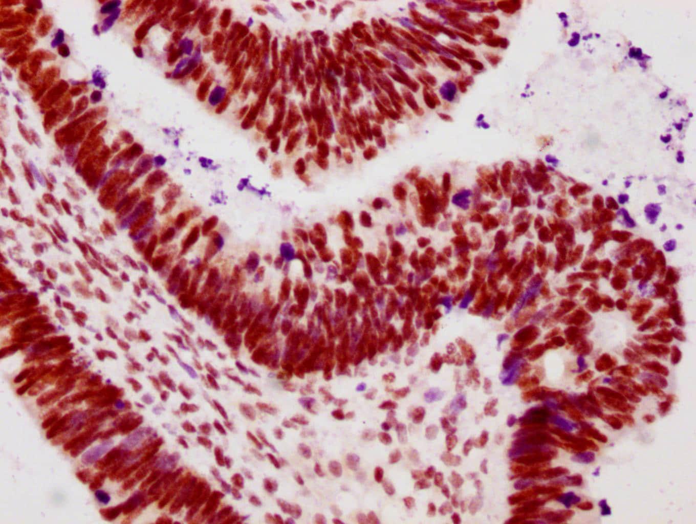 Phospho-POLR2A (Ser2) Antibody in Immunohistochemistry (Paraffin) (IHC (P))