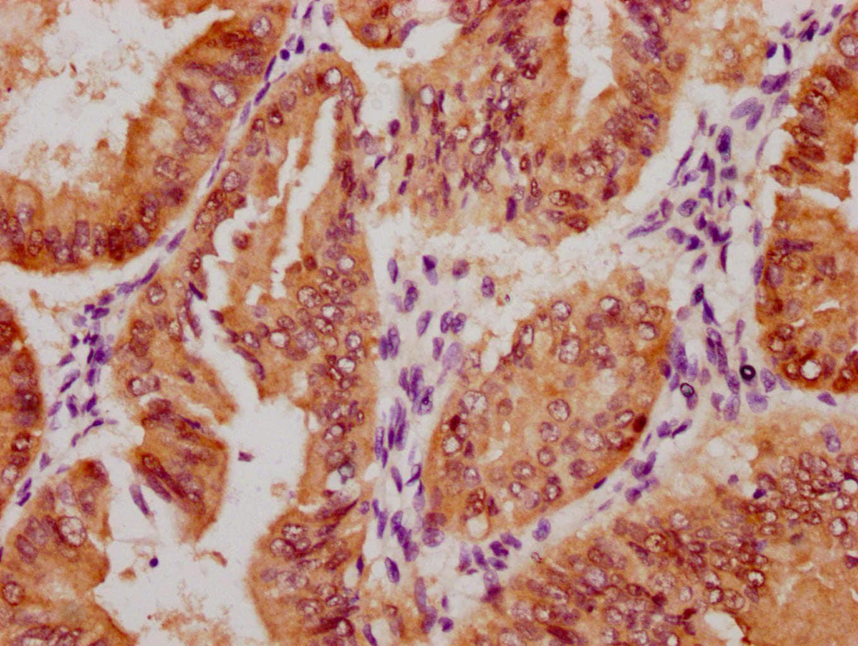 Phospho-YAP1 (Ser127) Antibody in Immunohistochemistry (Paraffin) (IHC (P))