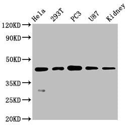 NDRG1 Antibody in Western Blot (WB)