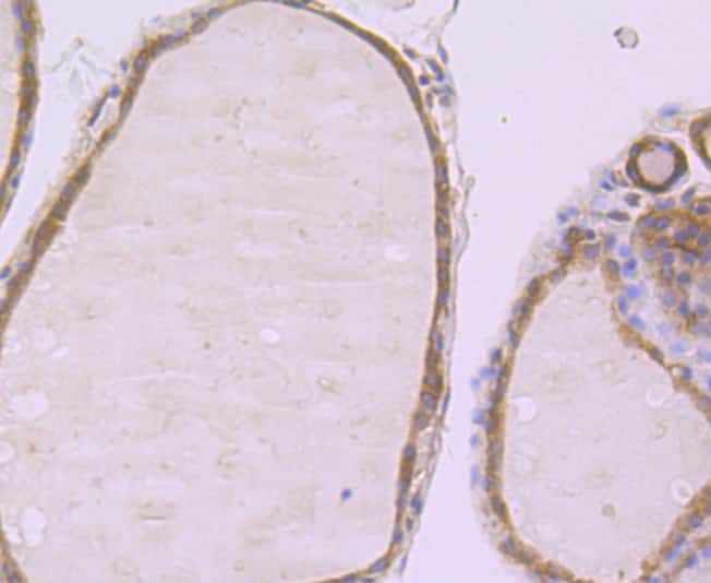 PFKM Antibody in Immunohistochemistry (Paraffin) (IHC (P))